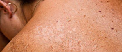 Huidkanker: gevaarlijk of relatief onschuldig?